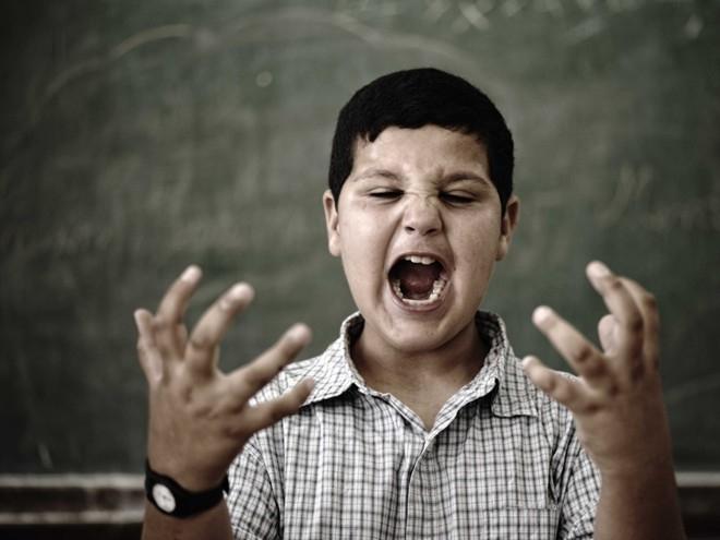 10 chứng rối loạn thần kinh kỳ lạ nhất