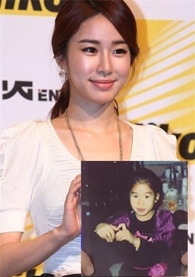 Những hình ảnh cũ của Yoo In Na thời bé so với hiện tại có nhiều điểm khác biệt. Cô bị cho là mỹ nhân đẹp lên nhờ dao kéo.