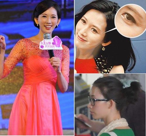 Siêu mẫu Lâm Chí Linh với những dấu hiệu tuổi tác khá sâu đậm trên viền mắt
