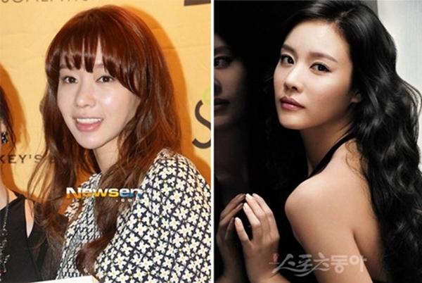 """Cô gái xinh đẹp của """"Sắc đẹp ngàn cân"""" ngày nào, Kim Ah Joong giờ khiến rất nhiều người thất vọng bởi gương mặt xộc xệch, thiếu tự nhiên."""