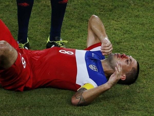 Sau một pha va chạm mạnh, Clint Dempsey đã bị chảy máu rất nhiều ở mũi nhưng vẫn kiên cường tiếp tục thi đấu