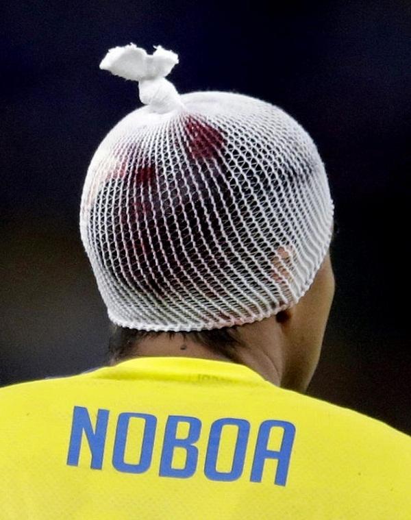 Noboa (Ecuador) đã đội một chiếc mũ lưới do phần đầu của anh bị chấn thương sau pha va chạm với Blaise Matuidi, cầu thủ của đội tuyển Pháp.