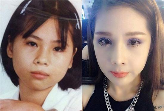 Hình ảnh Tina Lê trước và sau khi phẫu thuật thẩm mỹ 14 lần trong 10 năm.