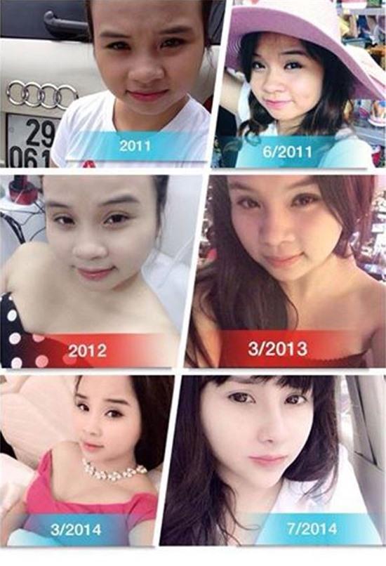 Sự thay đổi của Trang Venus trong các ca phẫu thuật thẩm mỹ.