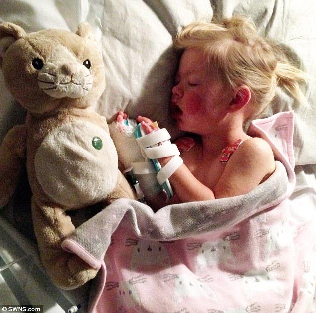 Dị ứng nặng với thuốc Nurofen, em bé sống sót như một phép lạ