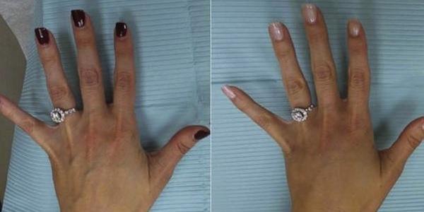Trào lưu phẫu thuật thẩm mỹ để đẹp hơn trên mạng xã hội
