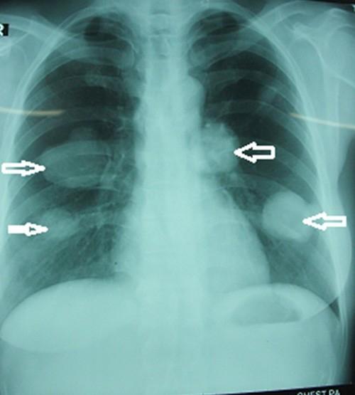 Bác sĩ kinh hãi khi thấy hàng nghìn sán chó ở phổi bệnh nhân