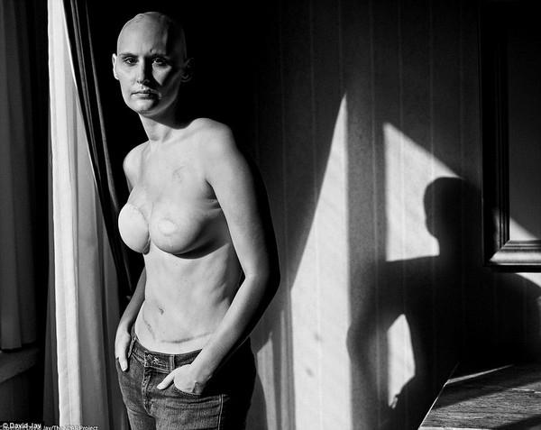 Trong những bức ảnh, nhiếp ảnh gia cho biết ông không nói về ung thư vú mà mô tả sự dũng cảm của các cô gái trẻ khi đối mặt với căn bệnh này
