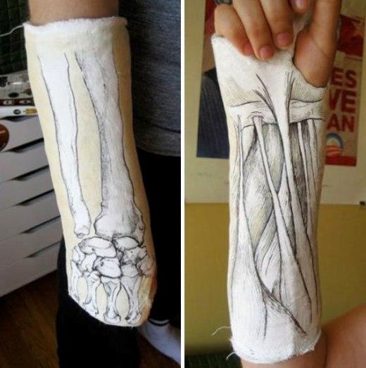 Siêu sáng tạo với bó bột hình xương