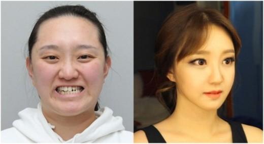 Tuy nhiên, sau khi nhờ đến các bác sĩ phẫu thuật, cô trở nên xinh đẹp như thiếu nữ đôi mươi.
