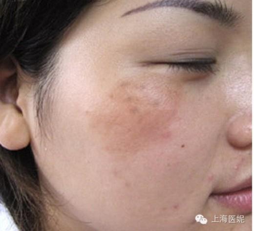 Độc tố thể hiện trên da mặt dưới dạng vết nám sậm màu theo bách khoa Baidu.