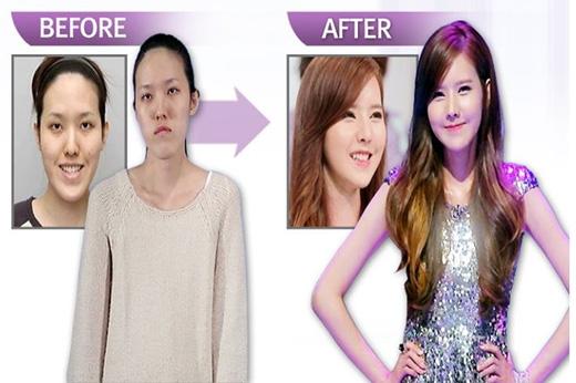 Sau ca phẫu thuật thành công, cô gái như được bước vào làng giải trí Hàn, khi trở thành thần tượng của nhiều cô gái trẻ mong muốn thay đổi bản thân