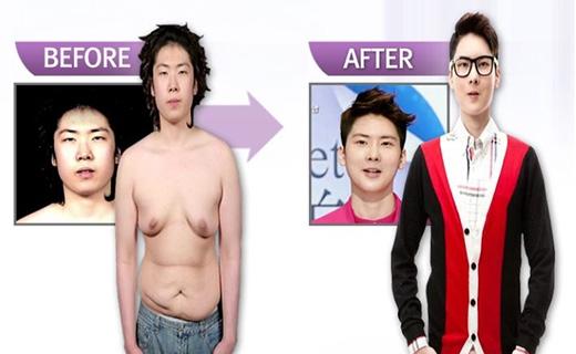 Chàng trai duy nhất xuất hiện trong danh sách là Park Jin Bae, khi anh thực hiện phẫu thuật cắt bỏ ngực, vì càng lớn bộ ngực của anh càng biến đổi giống phụ nữ. Sau ca phẫu thuật, nhiều người nhận xét Park Jin Bae đã thực sự trở thành một hotboy chính hiệu