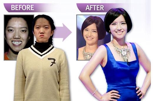 Sau ca phẫu thuật, nhiều chuyên gia nhận xét Choi Ji Hae có được gương mặt khả ái và tự nhiên hiếm có nhất từ trước đến nay