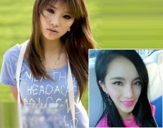 ... và ca sĩ Lý Vũ Hề cũng sở hữu khuôn mặt V line méo mó, nhưng các cô đều tự tin với diện mạo mới này.