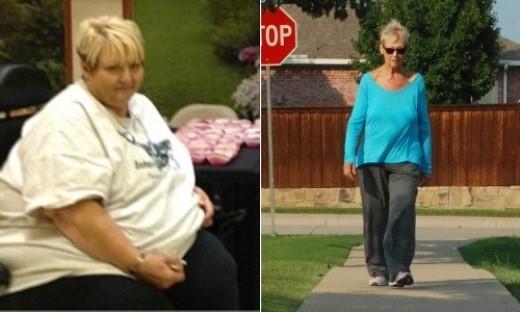 Brenda giảm 127kg. Brenda cảm thấy có một sự thay đổi lớn khi giảm được hơn 100kg .