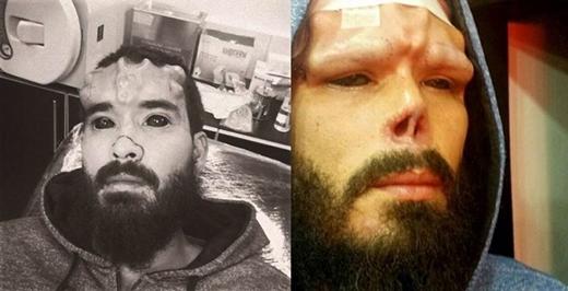 Henry trong phòng phẫu thuật với chiếc mũi được đánh dấu phần sẽ cắt bỏ (trái) và sau khi phẫu thuật