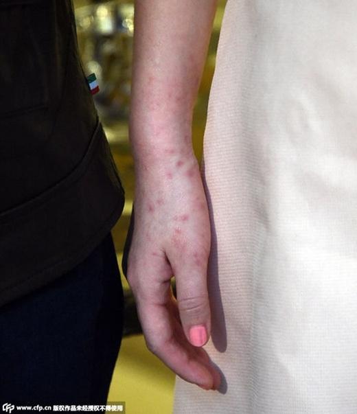 Cận cảnh bàn tay mẩn của nữ diễn viên