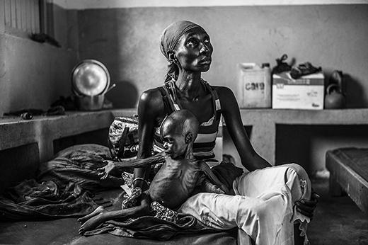 Cô gái trong ảnh mới 19 tuổi, nhưng đã có một cậu con trai 2 tuổi. Cả hai đang ngồi trong bệnh viện – nơi cậu bé đang điều trị căn bệnh suy dinh dưỡng cấp tính. Họ đến đây được vài tháng, sau hơn hai tuần lẩn trốn trong các bụi rậm nhằm thoát khỏi các cuộc bạo lực.