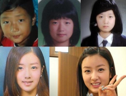 """Đôi mắt một mí chính là rắc rối của đa số thần tượng xứ Hàn và Bomi (A Pink) cũng không ngoại lệ. Ngoài ra, không ít ý kiến cho rằng nữ thần tượng cũng """"trùng tu"""" để sở hữu chiếc mũi cao, thanh thoát."""