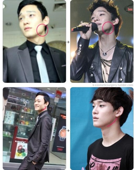 """Dù cố biện hộ cho thần tượng nhưng các fan EXO cũng phải thừa nhận đôi mắt hai mí và xương quai hàm thon gọn của Chen đều không phải là nhan sắc tự nhiên """"thiên phú""""."""