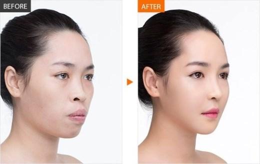 Hình ảnh chụp Thanh Quỳnh trước và sau khi được thẩm mỹ.