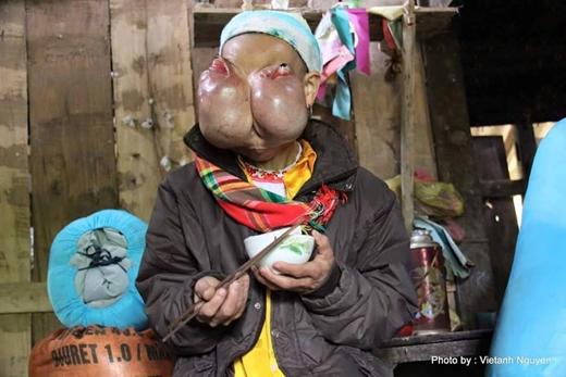 Nhiều năm qua bà Xiên phải chịu đau đớn về thể xác lẫn tinh thần do khối u gây ra