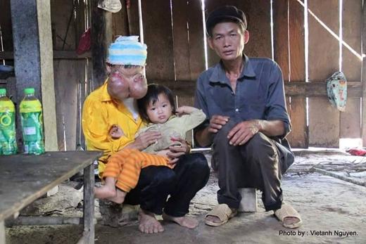 Dù đã cố gắng chữa trị nhưng vì gia đình quá nghèo nên bệnh tình của bà không thuyên giảm