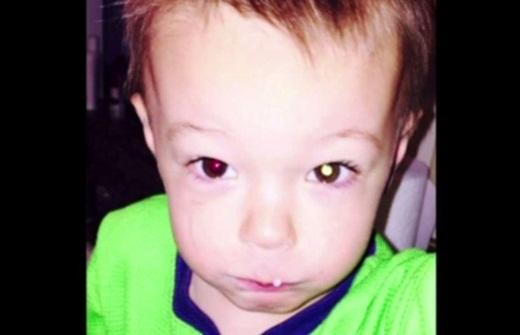 Đốm trắng xuất hiện trong mắt của Avery đã khiến mẹ cậu bé lo lắng.