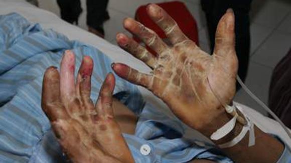 Viêm cầu khuẩn gây hủy hoại da nạn nhân