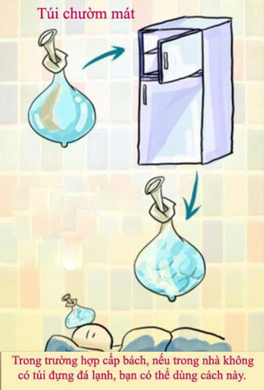 Không phải nhà ai cũng có sẵn túi chườm đá đâu, hãy dự trữ một vài chiếc bao cao su trong nhà để sử dụng trong những trường hợp khẩn cấp thế này.