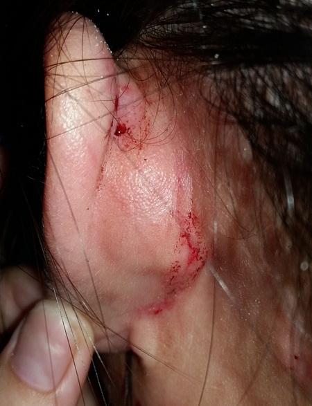 Chị Hòa bị thương ở mặt do bị đánh khi phản ánh cân thiếu. Ảnh: TTO