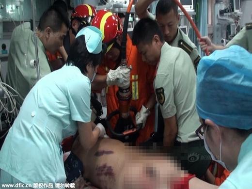 Các bác sĩ đã nhờ lực lượng cứu hộ đến để lấy thanh sắt ra khỏi người nạn nhân