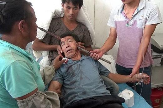 Hình ảnh kinh hoàng của người đàn ông bị thanh sắt đâm ngang mặt.