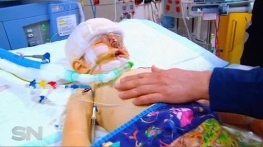 Ca phẫu thuật nguy hiểm kéo dài hơn 18 giờ đồng hồ