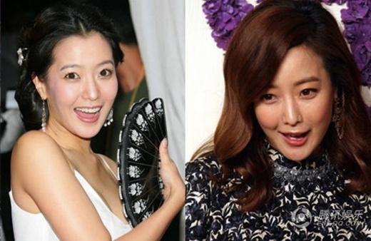 Kim Hee Sun với vùng miệng lệch và mặt cứng đờ.