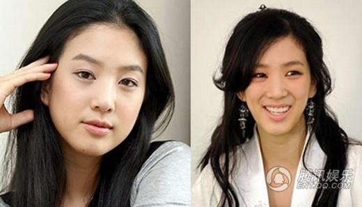 Jung Ryeo Won: Cô vướng nghi án gọt mặt và giờ gương mặt biểu cảm không còn nét tự nhiên.