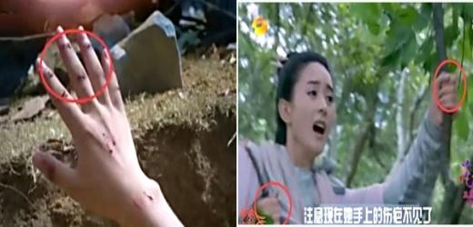 Bàn tay hái thuốc của Hoa Thiên Cốt lúc bị thương lúc không sao.