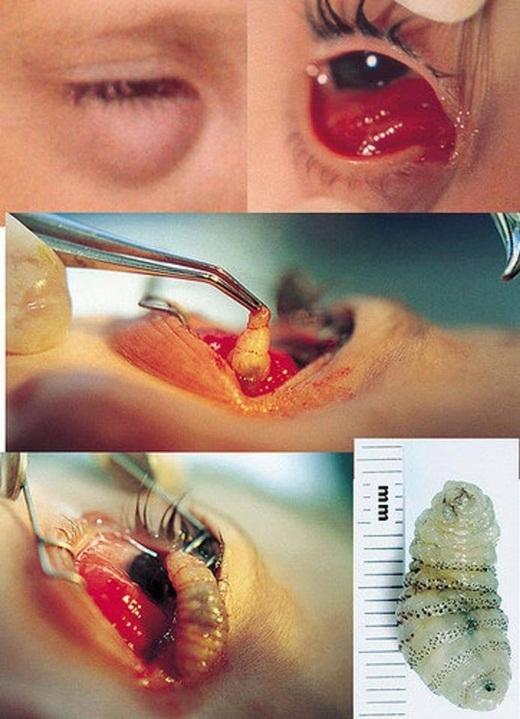 Một người đã đi đến bác sĩ vì cảm thấy khó chịu ở mắt. Anh được kê thuốc nhỏ mắt nhưng vài ngày sau, đôi mắt không đỡ mà còn sưng lên. Cuối cùng, sau khi xem xét, các bác sĩ đã lấy ra mộtký sinh trùngchuyên ký sinh trong dịch màng bụng của chuột hoặc chó, mèo ngay trong mắt của người này.