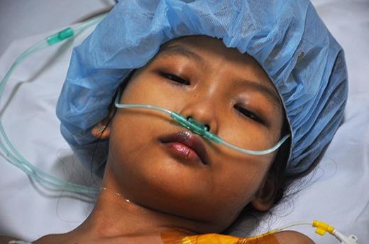 Cô bé có gương mặt xinh xắn nhưng lại mắc căn bệnh hiểm nghèo. Ảnh: DT