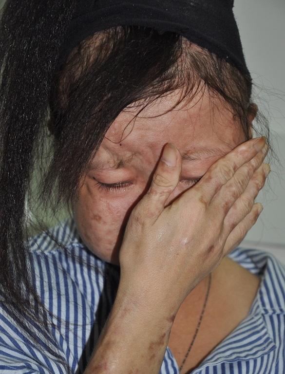 Thắm bật khóc nức nở khi nói về bệnh tình của mình. Ảnh: DT