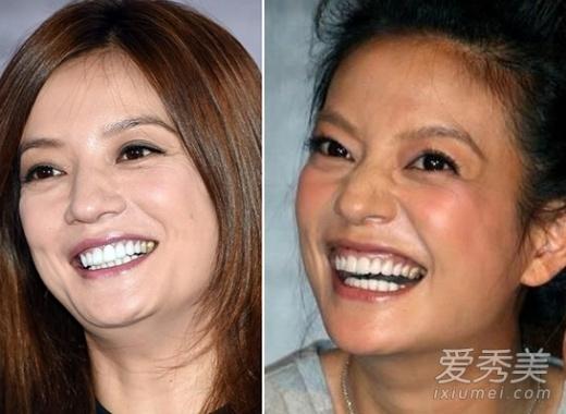 Triệu Vy béo và già nua hơn hẳn sau khi bước vào tuổi gần 40.