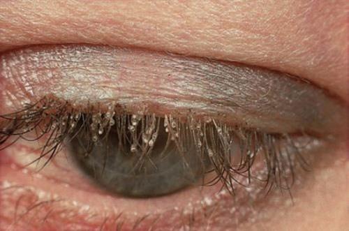 Mắt một người bị rận làm tổ