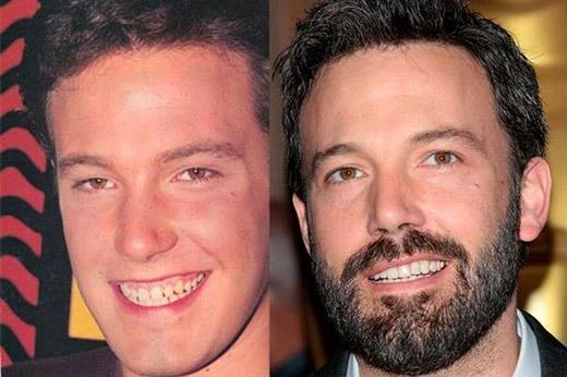 ít ai biết được Ben Affleck nam tính, lịch lãm của hiện tại đã từng có hàm răng không đều như thế này.