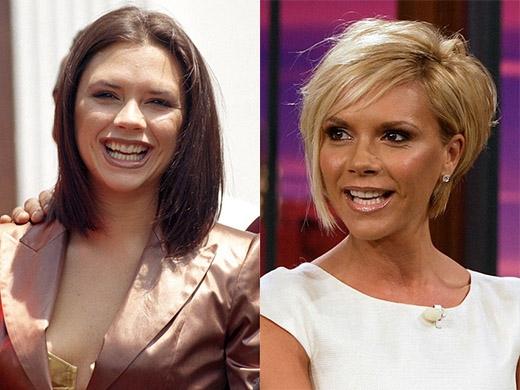 Victoria Beckham không chỉ chỉnh lại răng mà còn phẫu thuật miệng để có nụ cười xinh đẹp hơn.