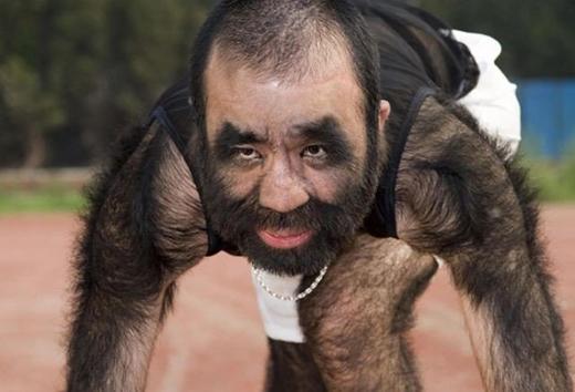 Yu Zhenhuan ở Trung Quốc từng được sách kỉ lục Guinness công nhận là người có nhiều lông nhất trên thế giới.