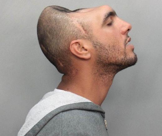 Đầu anh chàng này đã bị biến dạng sau tai nạn và bác sĩ phải cắt bỏ những phần xương của não bị hỏng rồi dùng da bao phủ bên ngoài.