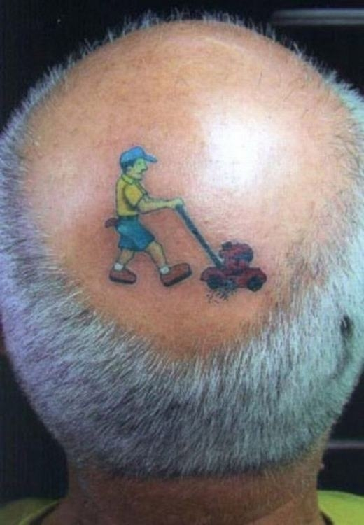 Đây chính là nguyên nhân khiến đầu ông lão bị hói?