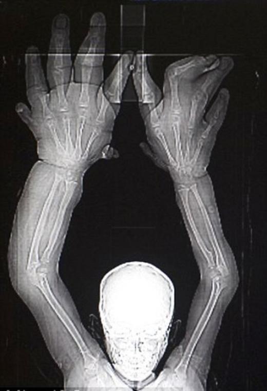 \ Theo các bác sĩ, Kaleem bị một căn bệnh bẩm sinh cực hiếm khiến cho đôi tay phát triển mất kiểm soát.