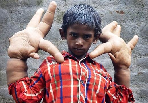Đôi tay của em to như 'chân voi', song ngón cái lại nhỏ hơn các ngón còn lại.